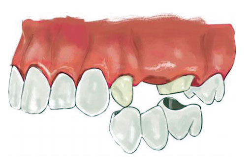 1.1. Introduction to Fixed Dentures