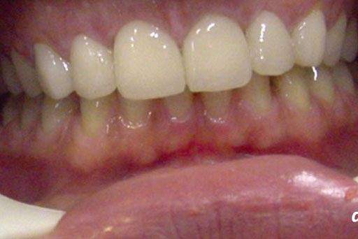 9.1. All Ceramic Restorations