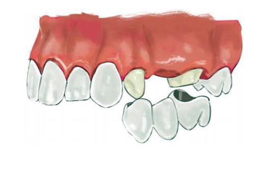 Section 1: Introduction to Fixed Dentures